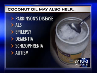 Coconut Oil Touted as Alzheimer's Remedy (1/3)