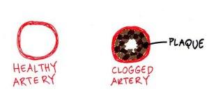 healthy-vs-clogged-artery