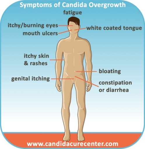 candida_albicans_overgrowth_symptoms